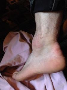 Drew's swollen ankle